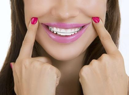 5 rzeczy, które powinnaś wiedzieć o aparacie na zęby