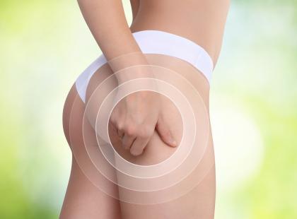 6 najważniejszych zasad w walce z cellulitem!