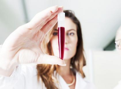 9 czynników, które mogą zafałszować wyniki badań krwi