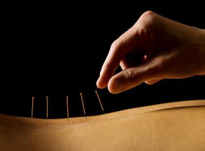 Akupunktura – po co wbija się igły?