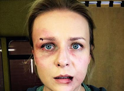 Aneta Zając brutalnie pobita? Aktorka pokazała niepokojące zdjęcie