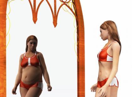 Anoreksja - studium przypadku. Historia Anity