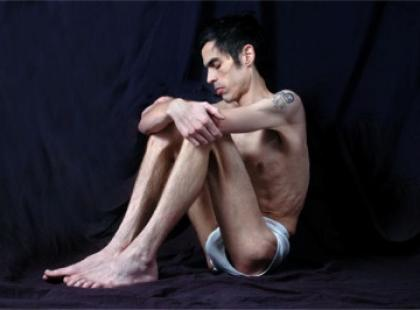 Anoreksja u chłopców