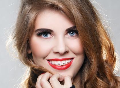 Aparat ortodontyczny na krócej - 6 zasad