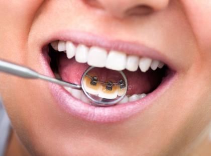 Aparat ortodontyczny po 40. roku życia to dobry pomysł?