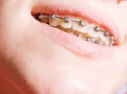 Aparat ortodontyczny – sposób na piękny uśmiech