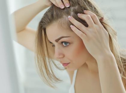 Atopowe zapalenie skóry głowy może powodować wypadanie włosów. Jak je leczyć?