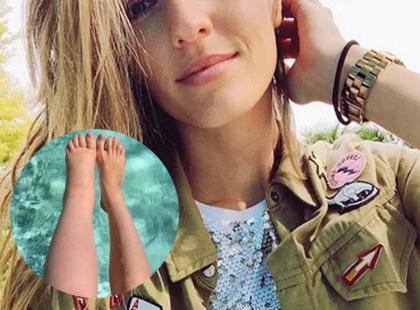 Australijska modelka cierpiąca na rzadką chorobę inspiruje młode mamy