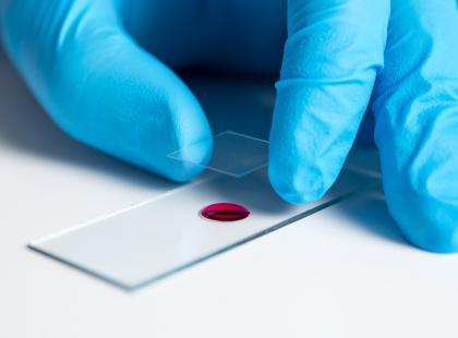 Badanie żywej kropli krwi: panaceum czy oszustwo?