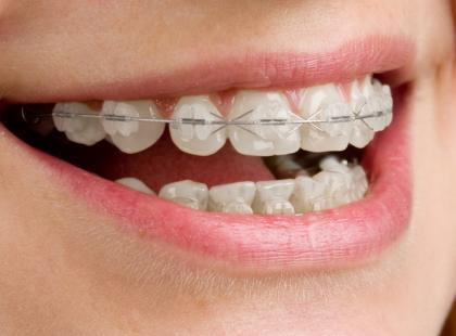 Bezpłatna opieka stomatologiczna