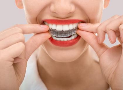 Białe zęby już w 5 dni