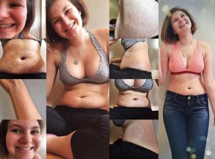 Blogerka, która pokazuje ciało bez upiększeń, została posądzona o… promowanie otyłości