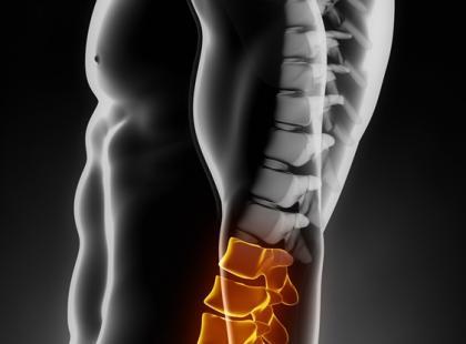 Ból krzyża – jak walczyć z bólem kręgosłupa lędźwiowo-krzyżowego?