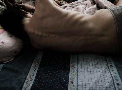 Bulimia i anoreksja – jakie mogą być przyczyny tych chorób?