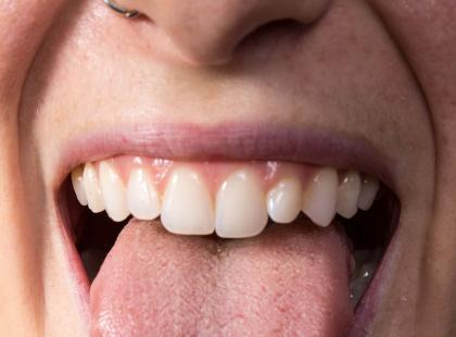Candida - 50 objawów, które mogą świadczyć o grzybicy