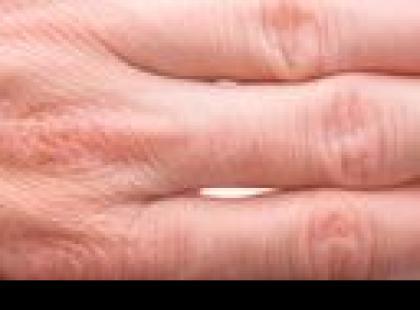 Chiromancja – kształt palców