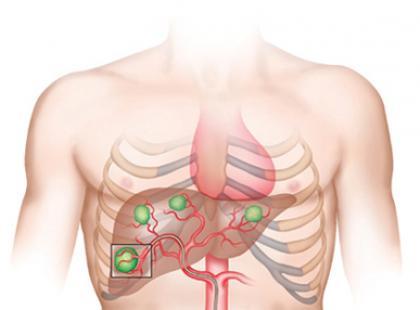 Chirurgiczne leczenie raka wątroby