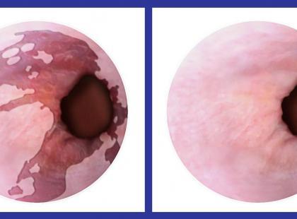 Chirurgicznie o leczeniu raka przełyku