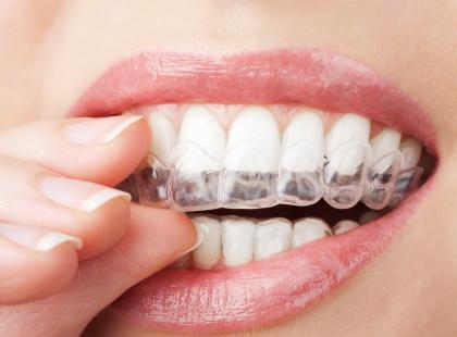 Clear Aligner – przeźroczysty aparat na zęby