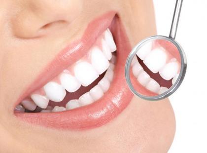 Co dają licówki na zębach