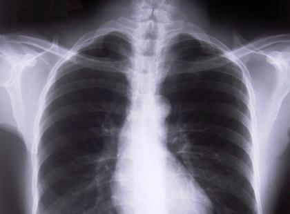 Co jest przyczyną rozedmy płuc?