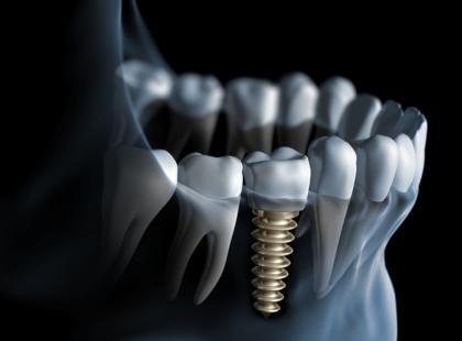 Co powinno nas zaniepokoić po wszczepieniu implantów?