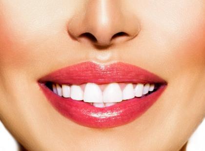 Co zrobić, by mieć zęby jak hollywoodzka gwiazda?