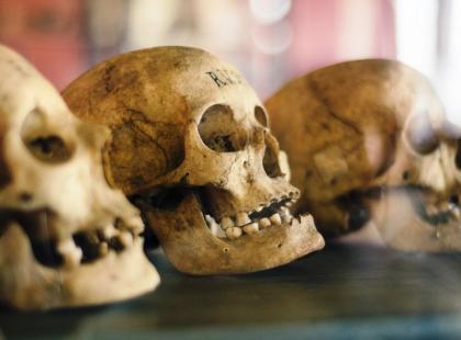 Czaszki, kości, zęby, a nawet płody… Kto i po co kupuje w internecie ludzkie szczątki?