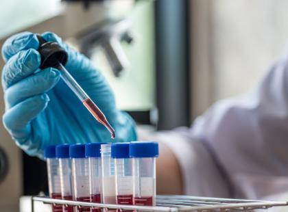 badanie laboratoryjne z krwi