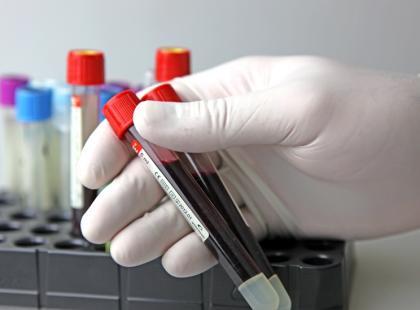 Czy komórki macierzyste staną się lekiem przyszłości?