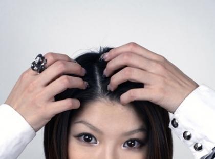 Czy łupież jest niebezpieczny dla włosów?