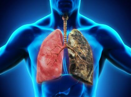 Czy masz zdrowe płuca? Sprawdzisz to za pomocą tej darmowej aplikacji!