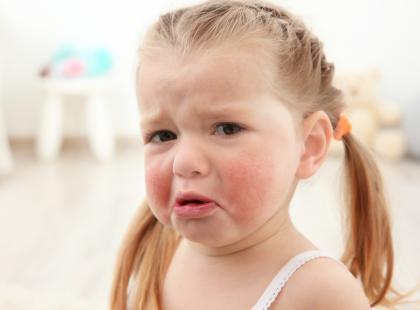 Czy można zapobiec AZS, czyli atopowemu zapaleniu skóry u dzieci?