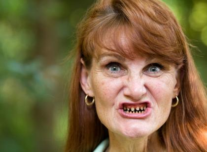 Czy Polacy dbają o zęby?