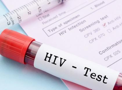Czy powinnaś zrobić test na HIV? [test]