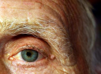 Czy w oku może się rozwinąć chłoniak?