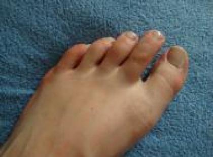 Czy wiesz jak pozbyć się grzybicy stóp?