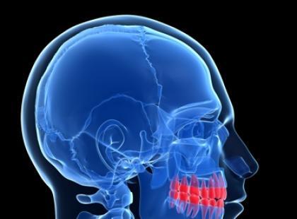 Czy zęby mogą spowodować ból głowy?