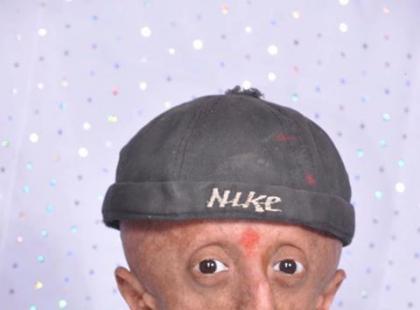 Czy znasz dziecko, które choruje na progerię?