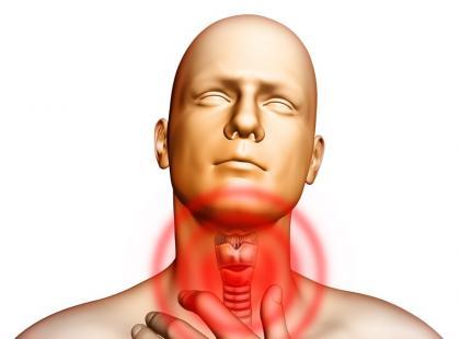 Czym jest angina ropna?