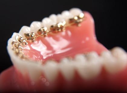 Czym są niewidoczne aparaty ortodontyczne?