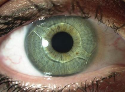 Czym są soczewki fakijne?