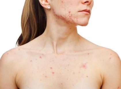 Czym zastąpić sterydy w leczeniu chorób skóry?