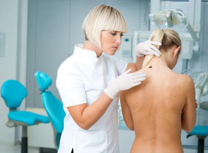 DFSP – złośliwy nowotwór skóry