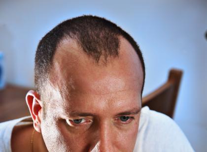 Dlaczego mężczyźni łysieją?