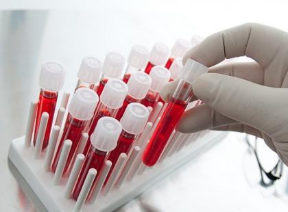 Dlaczego w czasie leczenia przeciwnowotworowego należy robić badanie krwi?