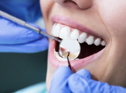 Dzięki tym radom unikniesz próchnicy zębów!