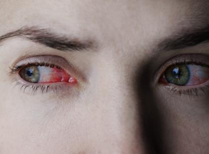 Dziewczyna oślepła, bo nie zdejmowała soczewek przez pół roku, a pełzaki zjadały jej oczy… Ku przestrodze!