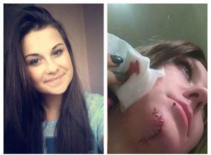 Dziewczyny po dwóch miesiącach odnalazły sprawcę, który okaleczył ich twarze. On trafił do aresztu, one mogą pomóc setkom innych ofiar