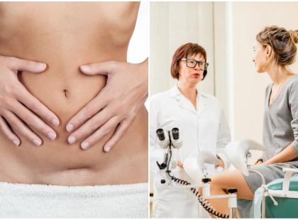 Endometrioza może rozwinąć się w bliźnie po cesarskim cięciu. Jak to możliwe?